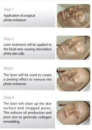 laser peel