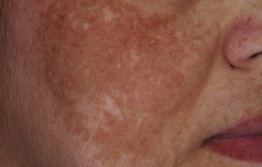 melasma laser treatment