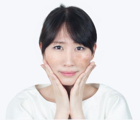 acne scar removal tips