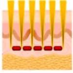 micro needle acne treatment
