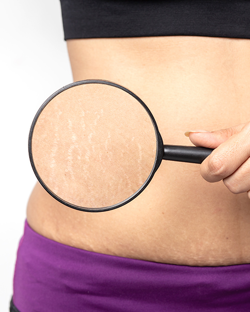 M Aesthetic Stretch Marks Removal