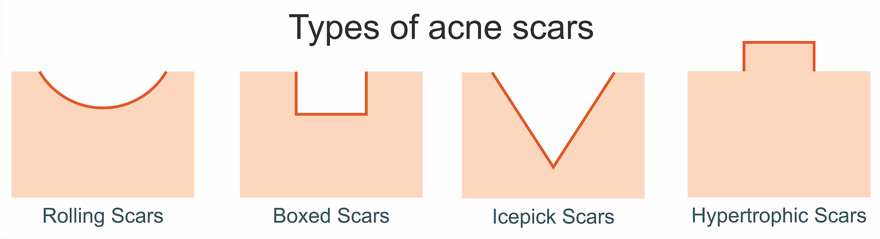 5 questions on acne scars singapore