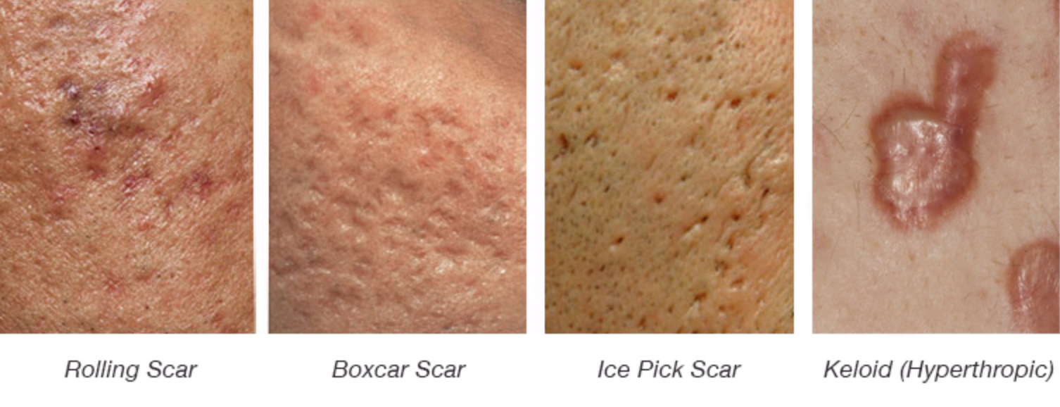 m aesthetic 5 questions on acne scars