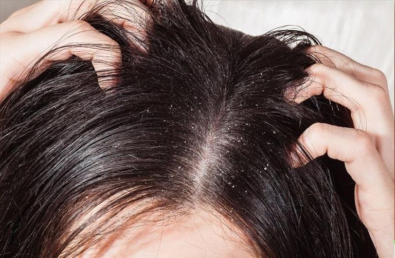 hair loss due to dandruff