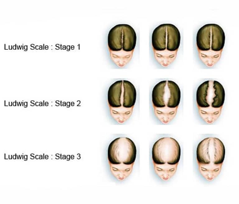 m aesthetic tips for men hair loss