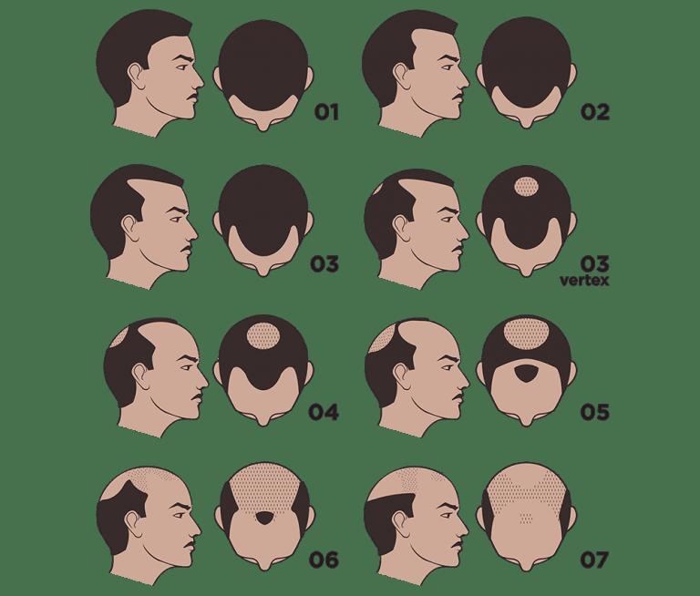 m aesthetic tips for hair loss