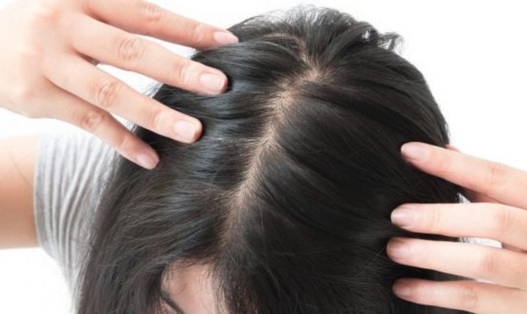 m aesthetic tips for female hair loss