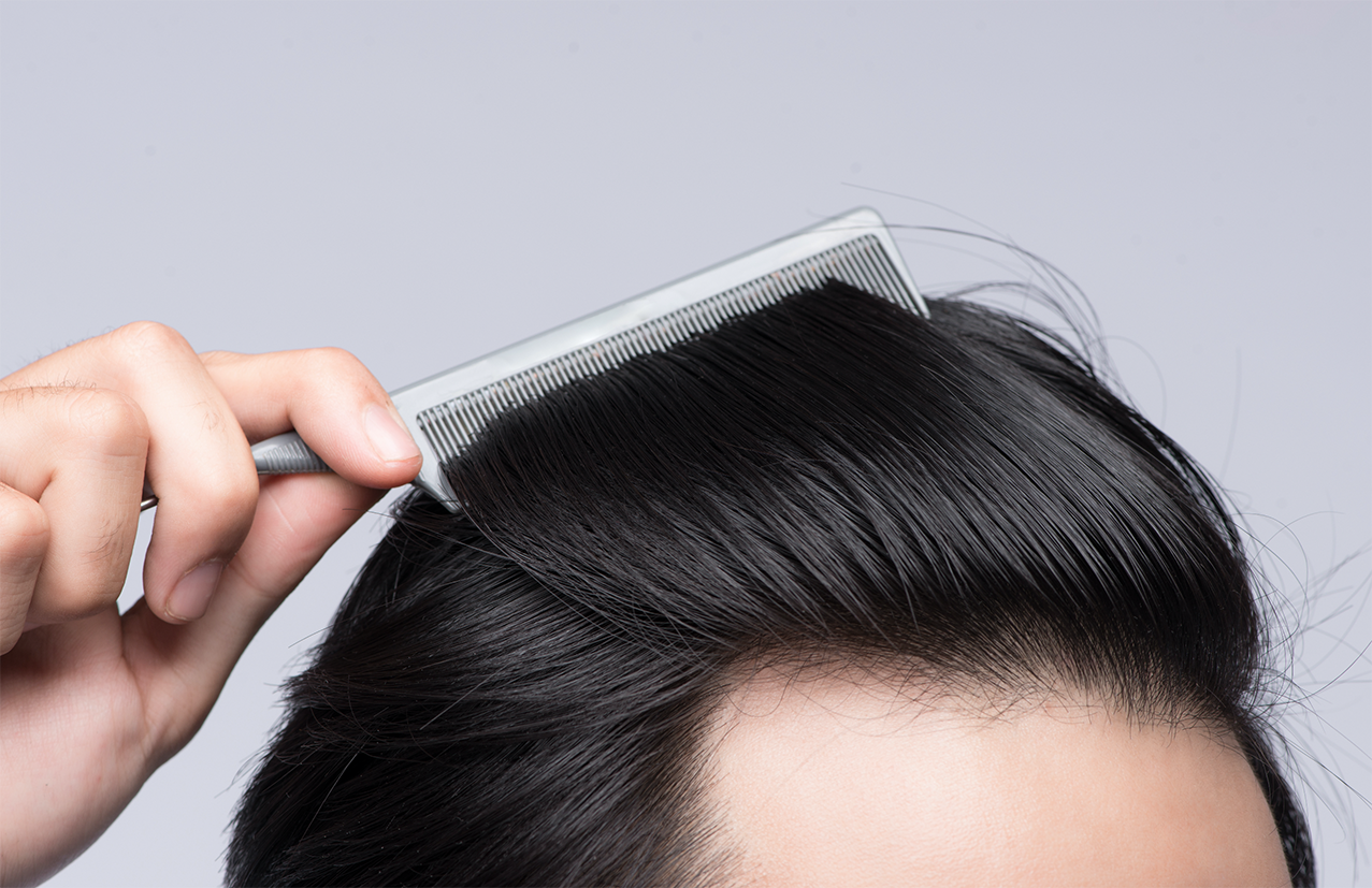hair loss guide causes