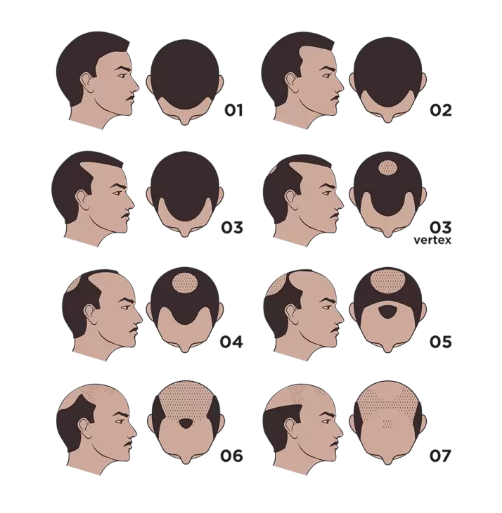hair loss guide solutions