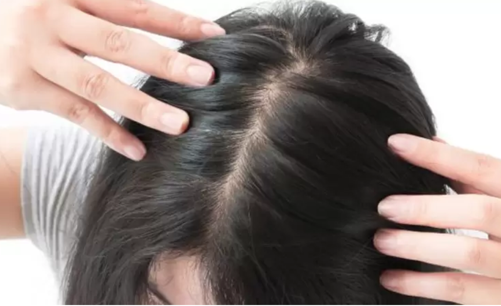 m aesthetic hair loss guide singapore