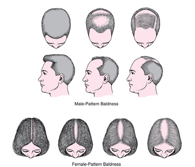 m-aesthetic clinic guide to hair loss the causes and solutions