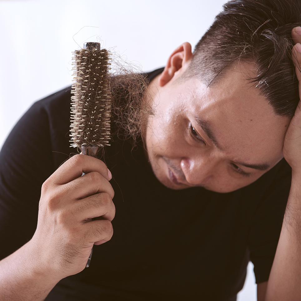 guide to hair loss the causes and solutions