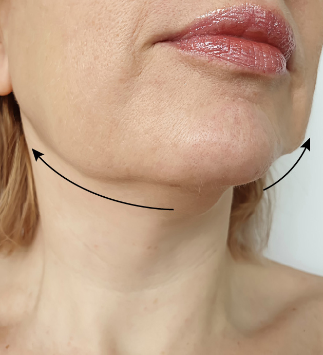 M Aesthetic Clinic Jawline Sculpting Treatment