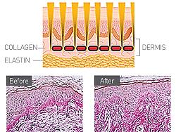 collagen dermis