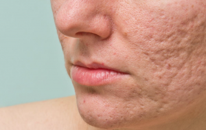 5 questions on acne scars