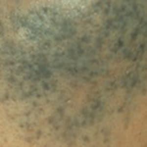 pigmentation removal treatment