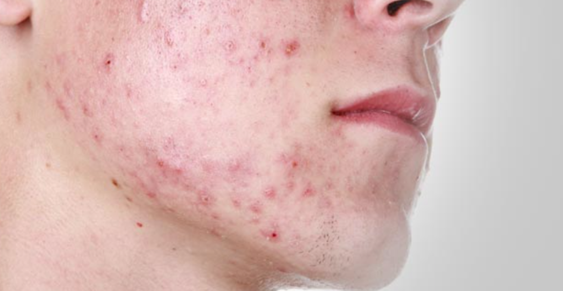 acne a sign of underlying illness