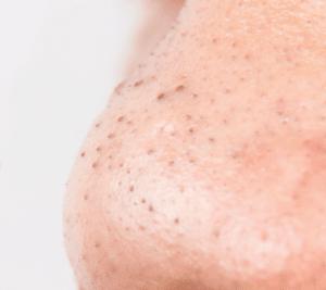 m aesthetic causes of acne underlying illness