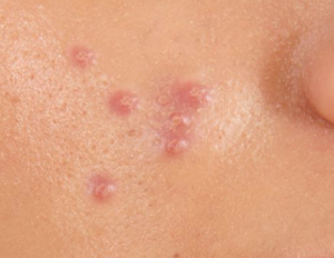 m aesthetic clinic acne a sign of underlying illness?