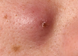 causes of acne and illness relation