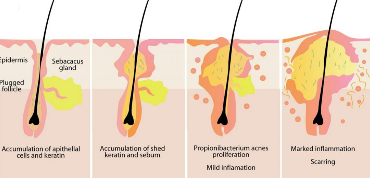 m aesthetic clinic causes of acne underlying illness
