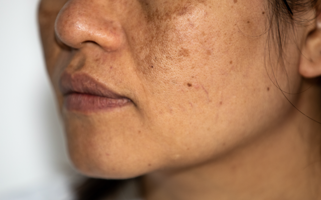 What You Should Know about Melasma Treatment