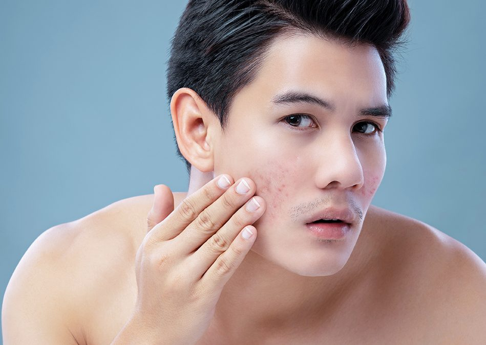 What is Acne Vulgaris and the best way to treat it