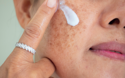 Best Melasma Treatments Available in Singapore and How to Treat Melasma