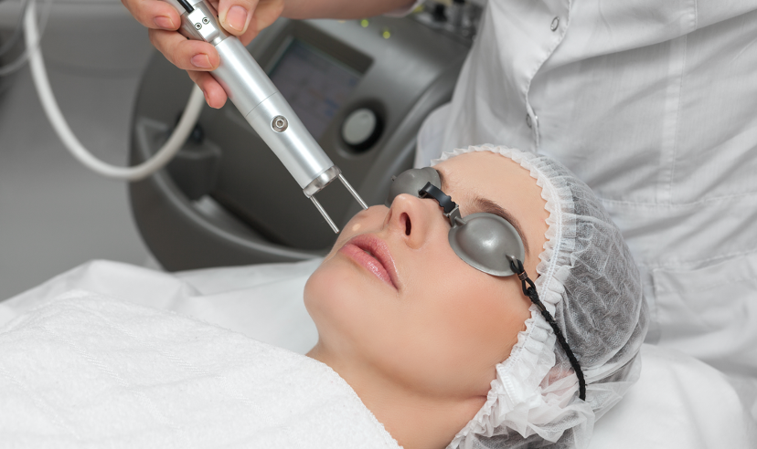 10 Facts About Acne Scar Laser Treatments
