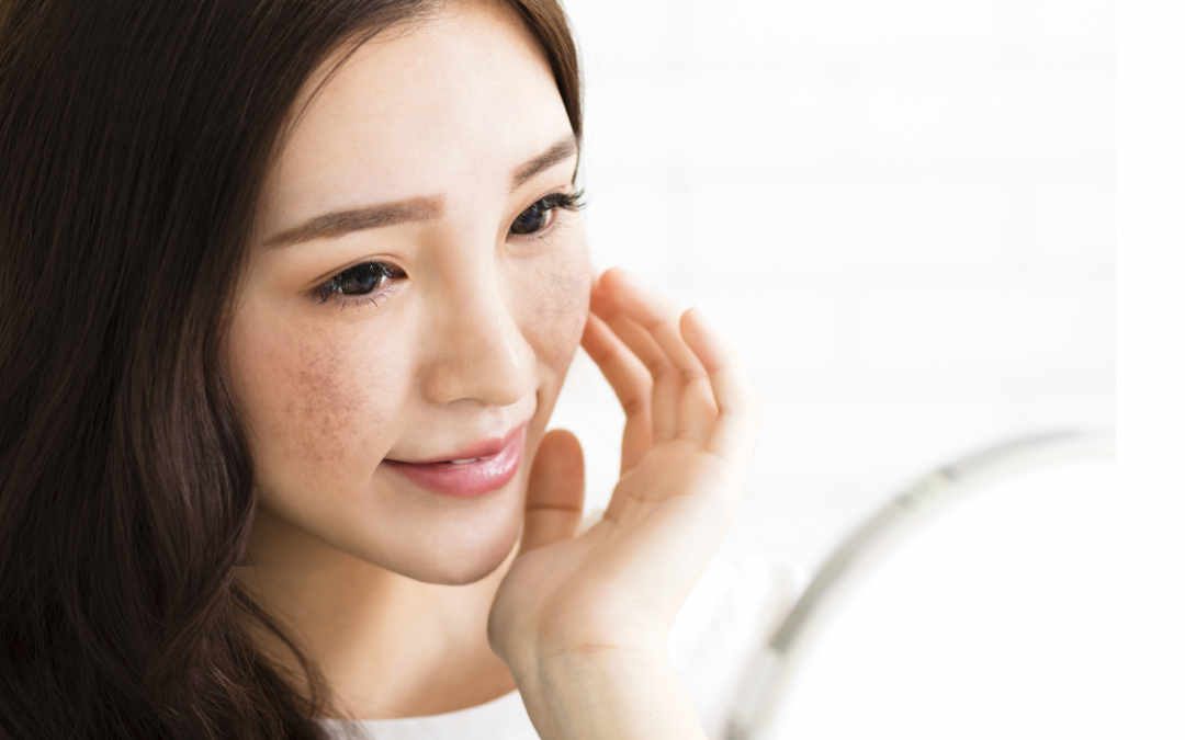 Will Melasma ever go away on its own?